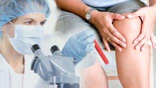 плазмолифтинг для суставов