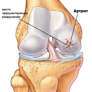 Артрит - заболевание суставов