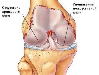 Артроз - заболевание суставов