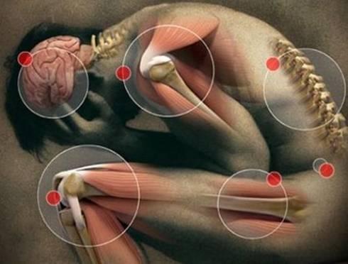 Миофасциальный синдром и боли в спине