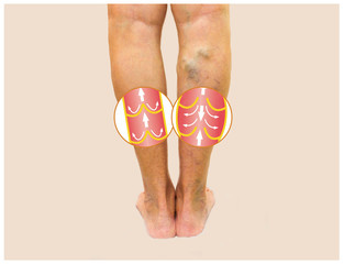 вены на ногах