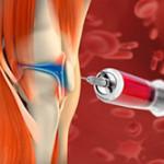 лечение суставов плазмой