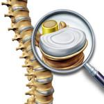 диагностика и лечение позвоночника