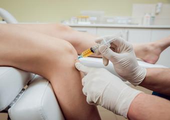 PRP терапия сустав