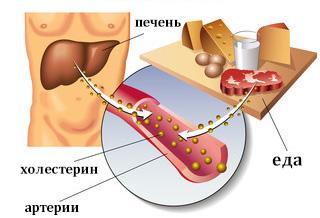 холестерин причины