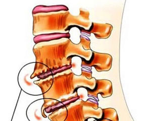 остеофит позвоночника