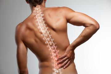 Мышечный дисбаланс, как причина развития грыжи диска