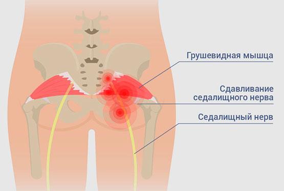 ягодица грушевидная мышца